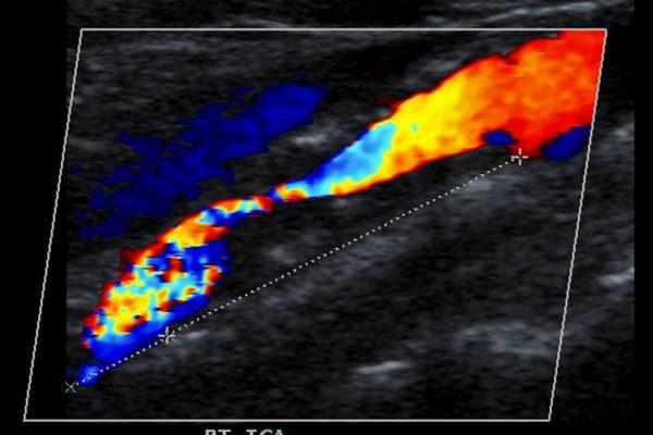 ultrazvok vratnih žil cena